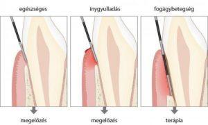fogágybetegség, kürettálás