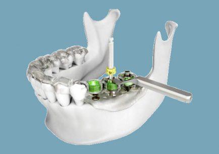 digitális implantáció