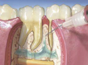 Intra ossealis érzéstelenítés, fogászati kezelés