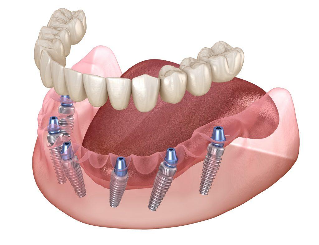 all on six implantáció
